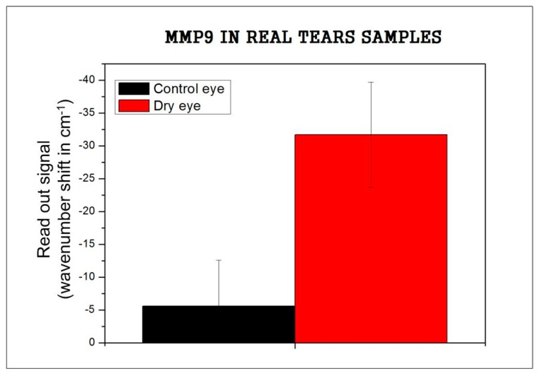 MMP9 signal in real tear samples.