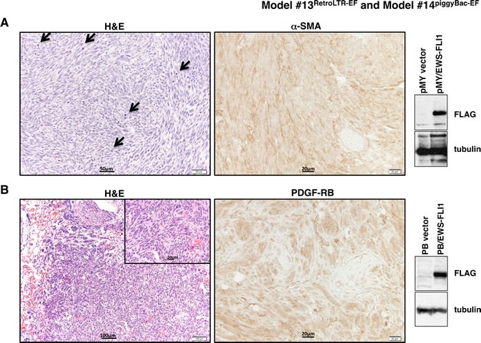 Histopathological analysis of tumors from Model #13 RetroLTR-EF and Model #14 piggyBac-EF A . Fibrosarcoma developed in Model #13 RetroLTR-EF . The storiform pattern of spindle-shaped, pleomorphic tumor cells is remarkable. Frequent mitotic figures (arrows) indicate aggressive tumor growth (left). α-SMA is a marker of smooth muscle and myofibroblastic cells. Human fibrosarcoma stains positive for α-SMA, whereas ES stains negative (middle). Expression of EWS-FLI1 in tumor tissue was confirmed using an anti-FLAG M2 antibody (right). B . Fibrosarcoma with a similar histology as (A) was also induced in Model #14 piggyBac-EF . Invasive growth of the tumor in lung tissue is noted (left). PDGF-RB is a mesenchymal marker that is frequently positive in human fibrosarcoma and negative in ES (middle). The expression of EWS-FLI1 was confirmed by western blotting (right).