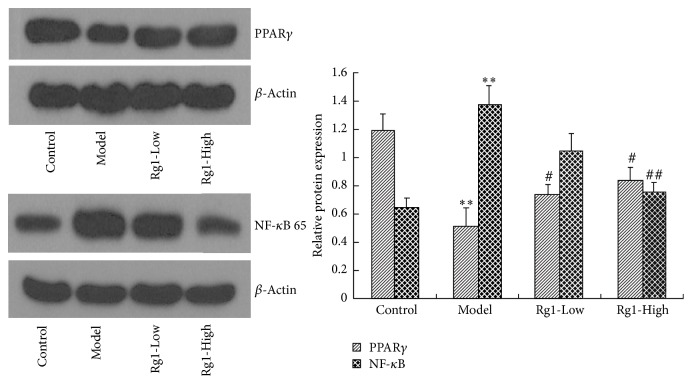 Effect of Rg1 on the protein expression of PPAR γ and NF- κ B 65 in brain tissue of rats. ∗∗ P