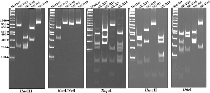 Polyacrylamide gel electrophoresis of the <t>Sigma</t> C RT-PCR products (~960 bp) following digestion with the indicated restriction enzymes. The <t>DNA</t> molecular weight markers are indicated on the left.