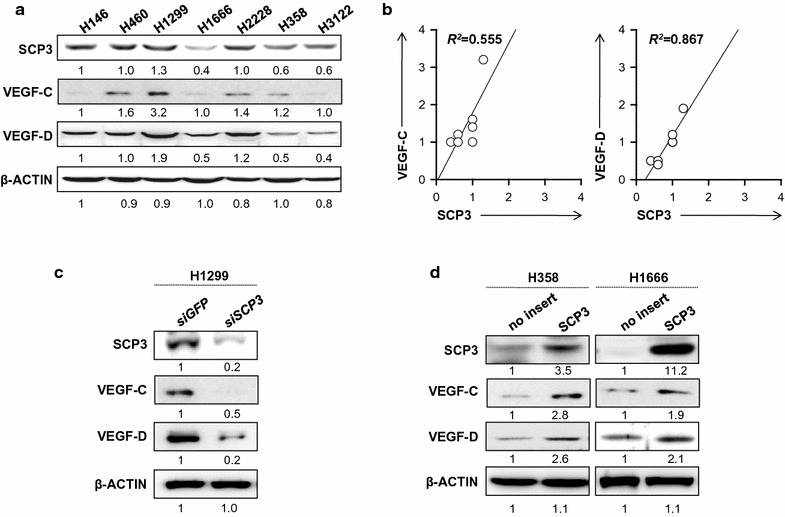 Correlation between SCP3 and VEGF-C or VEGF-D expressions in human lung cancer cells. a Western blot analysis to characterize the expression of SCP3, VEGF-C and VEGF-D in various human lung adenocarcinoma cells; H146, H460, H1299, H1666, H2228, H358, and H3122. b A plot graph demonstrating the linear relationship between expressing SCP3 (x-axis) and VEGF-C or VEGF-D (y-axis). Western blot analysis of SCP3 expression in lung cancer cell lines cells retrovirally transduced with a pMSCV vector encoding SCP3. c siGFP - or siScp3 transfected with H1299 d H358 and H1666 cells, retrovirally transduced with PMSCV vector encoding either no insert (H358/no insert, H1666/no insert) or Scp3 (H358/SCP3, H1666/SCP3), were incubated in 0.1% FBS-containing DMEM medium for 24 h