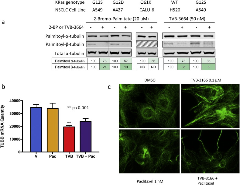 FASN inhibition disrupts tubulin palmitoylation, expression and microtubule organization. (A) TVB-3664 inhibits tubulin palmitoylation in NSCLC cell lines. Cells were treated with DMSO, TVB-3664 (48 h), or 2-bromopalimitate (18 h) as a positive control as indicated. Cell lysates were harvested and analyzed for palmitoylation of alpha-or beta-tubulin using acyl-biotin exchange chemistry followed by Western blot analysis. (B) TVB-3166 inhibits b-tubulin mRNA expression. 22Rv1 prostate tumor cells were treated with DMSO, TVB-3166, paclitaxel, or the combination of TVB-3166 and paclitaxel for 48 h in vitro. Three individual biological replicates were treated and used for analysis by RNA sequencing to quantitate mRNA levels. TVB-3166-treated cells showed a significant decrease in b-tubulin mRNA ( p