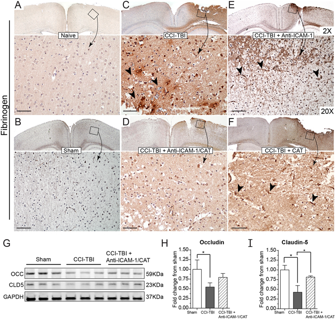 CCI-TBI increases BBB permeability to fibrinogen and decreases tight junction protein detection with a rescue or preservation of barrier function with anti-ICAM-1/catalase. Immunohistochemical detection of plasma protein fibrinogen in brain parenchyma at 48 hr following moderate CCI-TBI. ( A,B ) Naive and sham controls show absent fibrinogen detection in the brain parenchyma, as the BBB is healthy and intact. Absence of staining maintained at 20X. ( C ) Following CCI-TBI, BBB hyperpermeability permits the extravasation of fibrinogen into the brain tissue. Black arrowheads indicate areas of dense fibrinogen staining in the perivascular space. ( D ) Anti-ICAM-1/catalase reduces parenchymal and perivascular fibrinogen detection in the brain by 48 hrs post-CCI-TBI. ( E , F ) Anti-ICAM-1 antibody and catalase alone do not appear to reduce fibrinogen extravasation as indicated by intense fibrinogen detection in the impact site with dense staining in perivascular space. Scale bar equals 50 microns. (Top panels 2X, bottom panels 20X). ( G ) Western blot analysis of tight junction protein expression for occludin and claudin-5 in the cortex ipsilateral to the site of CCI-TBI for sham, CCI-TBI and CCI-TBI+anti-ICAM-1/catalase groups. The whole membrane was cut at 75 kDa and between 37 and 25 kDa to minimize antibody use. Membranes were separately probed for occludin and claudin-5. The membrane probed for occludin was striped, reblocked, and then probed for GAPDH. Full length blots are presented in Supplementary Figure 1 . ( H , I ) Densitometry quantification for occludin and claudin-5 normalized to GAPDH presented as mean ± SD (Ordinary one-way ANOVA with multiple comparisons occludin F = 5.779, P = 0.0399. Claudin-5 F = 17.42, P = 0.0032).