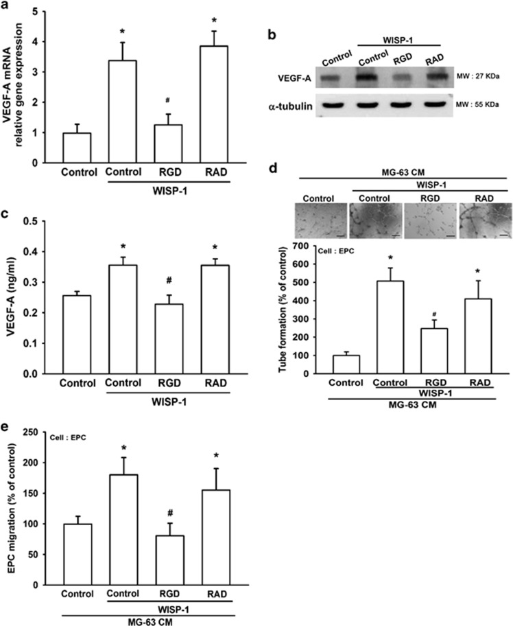 WISP-1 increases VEGF-A expression and angiogenesis via α v β 3 integrin. ( a – c ) MG-63 cells were pretreated with RGD (10 μ M) or RAD (10 μ M) for 30 min, then treated with WISP-1 (30 ng/ml) for 24 h. mRNA and VEGF-A protein expression was detected by RT-qPCR, western blot (MW, molecular weight), and enzyme-linked immunosorbent assay. Untreated cells were used as the control. ( d and e ) MG-63 cells were pretreated with RGD (10 μ M) or RAD (10 μ M) for 30 min, then treated with WISP-1 (30 ng/ml) for 24 h. Culture medium was collected as CM and then applied to the EPCs for 24 h. EPC capillary-like structure formation was examined by tube formation (bar=100 μ m) and cell migration by the Transwell migration assay. CM collected from untreated cells was used as the control. Each experiment was performed in triplicate ( N =3). Results are expressed as the mean±S.E.M. * P