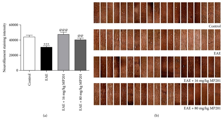 MP201 treatment reduces axonal loss in optic neuritis. Neurofilament staining was used to evaluate axonal loss in sections of optic nerves isolated at day 42 postimmunization. (a) The optical density of neurofilament staining calculated from three equal-sized fields from each optic nerve shows a significant decrease ( ∗∗∗ p