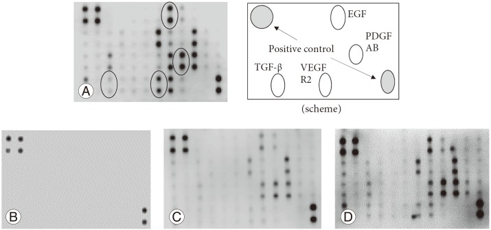 Detection of growth factors. (A) Expression levels of platelet-derived growth factor AB (PDGF AB), vascular endothelial growth factor receptor 2 (VEGF R2), transforming growth factor-β (TGF-β), and epidermal growth factor (EGF) were evaluated in fresh platelet-rich plasma (PRP) according to the intensity of the spots. The location of each is shown in the scheme. (B) PRP was stored at room tempertature for 8 weeks, and all growth factor expressions were almost undetectable. (C) Frozen PRP was stored for 8 weeks, after which faint expression of growth factors was observed. (D) The freeze-dried PRP was stored for 8 weeks, and almost all growth factors were expressed robustly.