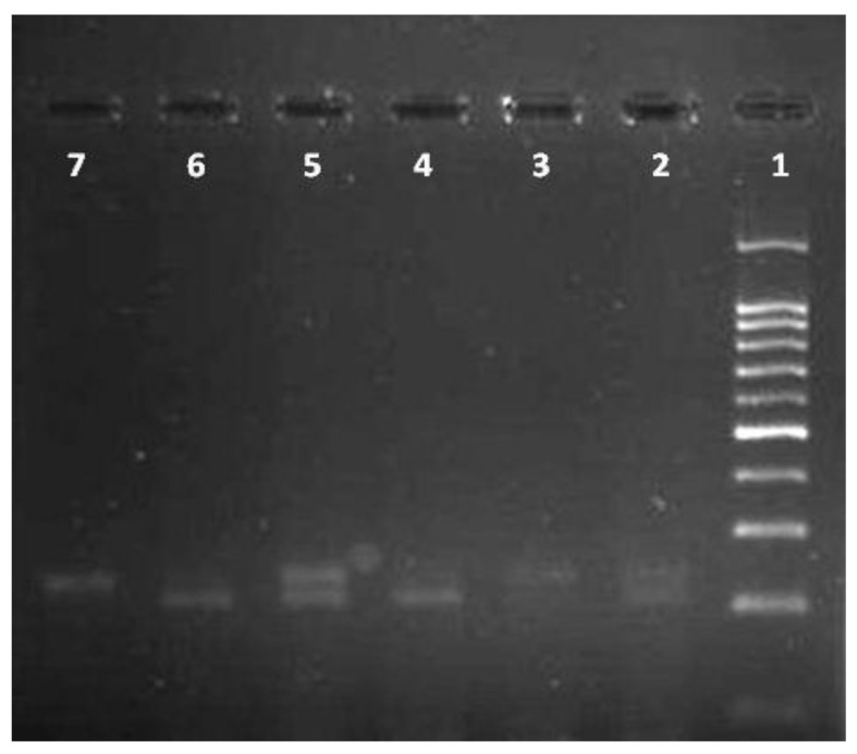 PCR-restriction enzyme ( Bsr BI digestion) fragmentation patterns on the agarose gel stained with <t>ethidium</t> bromide for determination –108C > T polymorphism. <t>DNA</t> ladder (100bp) was loaded into well 1; wells 2 and 5 were CT; wells 3 and 7 were TT, wells 4 and 6 were CC.