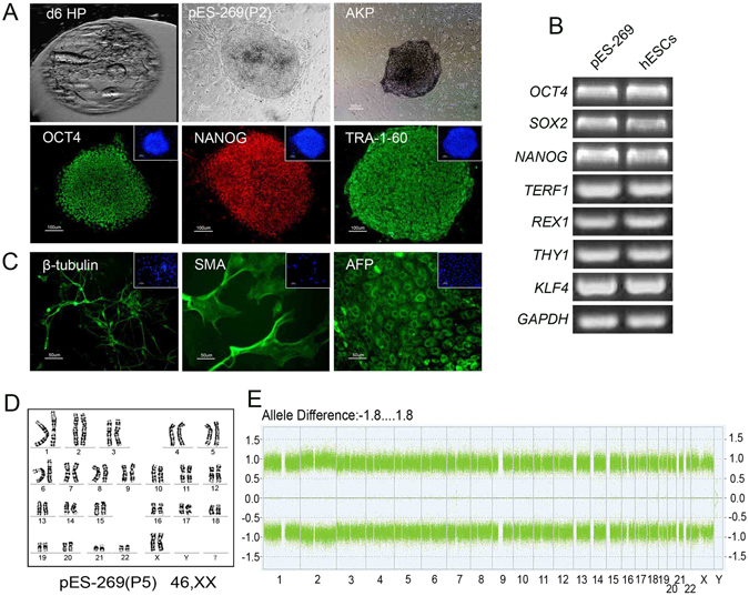 Isolation and characterization of pES-269 cells with commonly used markers. ( A ) pES-269 cells isolation, Alkaline phosphatase (AKP) staining and immunofluorescence staining using <t>anti-OCT4,</t> <t>-NANOG</t> and -TRA-1-60 antibodies; ( B ) RT-PCR assays for the expression of pluripotency-associated markers in pES-269 cells; ( C ) Immunostaining of differentiated cells from embryoid bodies (EBs) formed by pES-269 cells, using antibodies against β-tubulin (ectoderm), SMA (mesoderm), and AFP (endoderm); ( D ) Karyotype analysis of pES-269 cells; ( E ) Genome-wide SNP analysis of pES-269 cells using an Affymetrix 250 K SNP Array. A homozygous AA allele maps to approximately +1, and a homozygous BB allele maps to approximately −1, with the heterozygote mapping to approximately 0.