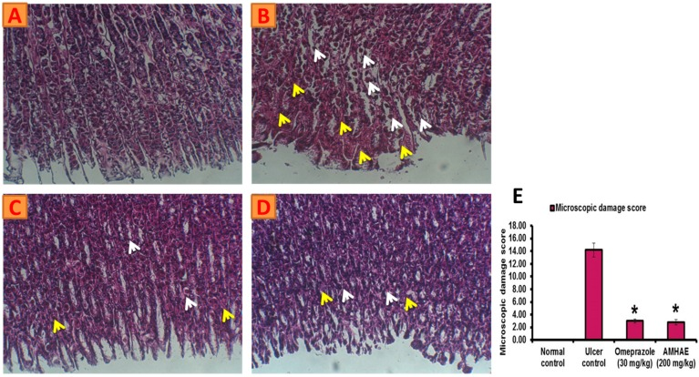 AMHAE (200 mg/kg) alleviates ethanol-induced gastric histological alterations in rats. ( A ) Normal; ( B ) ulcer control; ( C ) omeprazole (30 mg/kg); ( D ) AMHAE (200 mg/kg); and ( E ) microscopic damage score level of different groups. Original magnification 20×. * p
