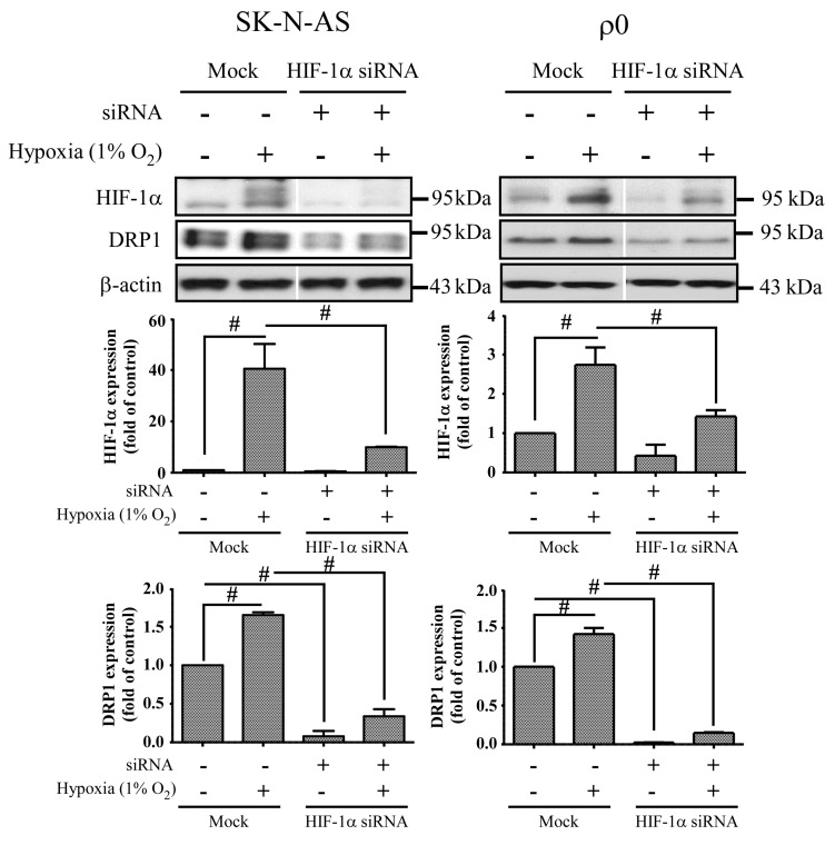 The effect of HIF-1α siRNA. Cells were transiently transfected with siRNA targeted for HIF-1α (HIF-1α siRNA) or non-specific siRNA (Mock) for 24 h, and then incubated in normoxia or 1% O 2 for 4 h. The expression of HIF-1α, DRP1 and β-actin proteins was revealed by Western blot analysis, and the quantification analyses are shown below. β-Actin was used as a loading control. The results are shown as mean ± SD of at least three experiments. # Represented p