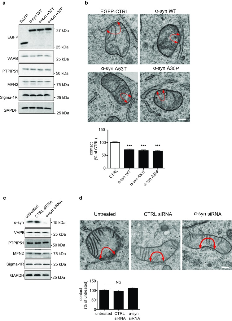 Expression of wild-type and familial Parkinson's disease mutant α-synuclein reduce ER–mitochondria associations in SH-SY5Y cells. a Expression of α-synuclein does not alter expression of VAPB, PTPIP51 mitofusin-2 (MFN2) or the Sigma-1 receptor in stably transfected SH-SY5Y cells. Immunoblots of SH-SY5Y cells stably transfected with EGFP as a control, EGFP-α-synuclein, EGFP-α-synucleinA53T or EGFP-α-synucleinA30P and probed on immunoblots as indicated; GAPDH is shown as a loading control. Molecular masses in kD are shown on the right. b Representative electron micrographs of ER–mitochondria associations in SH-SY5Y cells expressing control EGFP vector (CTRL), EGFP-α-synuclein, EGFP-α-synucleinA53T or EGFP-α-synucleinA30P; arrowheads with loops show regions of association. Scale bar is 200 nm. Bar chart shows % of the mitochondrial surface closely apposed to ER in the different samples. Data were analysed by one-way ANOVA followed by Tukey's multiple comparison test. N = 30–35 cells and 107–155 mitochondria; error bars are SEM; *** p