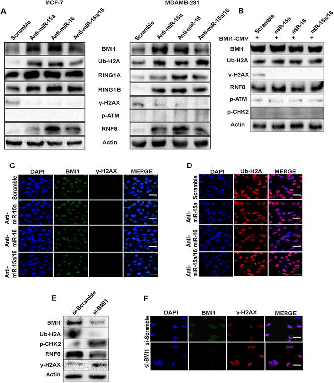 Rescue of BMI1 level as well as inhibiting endogenous miR-15a, miR-16 reduces miR-15a, miR-16 mediated DNA damage. Expression of BMI1, ϒ-H2AX, p-ATM, Ub-H2A and RNF8 were checked in MCF-7, MDAMB-231 cells transfected with anti-miR-15a, anti-miR-16 or both anti-miR-15a/16. Actin served as gel loading control. Blots were cropped to enhance the representation ( A ). Expression of BMI1, ϒ-H2AX, Ub-H2A, RNF8, p-CHK2, p-ATM were checked in MDAMB-231 cells co-transfected with miR-15a, miR-16, miR-15a/16 and pT3-EF1a-Bmi1 plasmid that lack 3′UTR. Scramble miRNA vector used to serve as a control. Actin is used as a gel loading control. Blots were cropped to enhance the representation ( B ). Immunofluorescence studies showing accumulation of BMI1, ϒ-H2AX ( C ), Ub-H2A ( D ) in MDAMB-231 cells transfected with anti-miR-15a anti-miR-16 or both anti-miR-15a/16 under etoposide- treated conditions. Bar indicates 200 μm. Expression of BMI1, Ub-H2A, γ-H2AX, p-CHK2, RNF8 were checked in MDAMB-231 cells transfected with either scrambled si-RNA or si-RNA specifically against BMI1. Actin is used as a gel loading control. Blots were cropped to enhance the representation ( E ). Immunofluorescence studies showing the localization of BMI1 and γ-H2AX foci in cells treated with scramble si-RNA (si-scrambled) or si-RNA against BMI1 (si-BMI1). Cells show an increase in γ-H2AX foci upon depletion of BMI1. Bar indicates 200 μm ( F ).