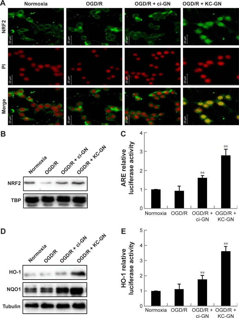 KC-GNs activate NRF2/ARE signaling and induce the expression of HO-1 and NQO1. Notes: Cells were pretreated with KC-GNs or ci-GNs for 1 h before OGD/R treatment. ( A ) Fixed cells were stained with PI and an anti-NRF2 antibody, followed by incubation with an FITC-conjugated anti-rabbit IgG secondary antibody. The samples were observed by confocal microscopy. Scale bar =20 μm. ( B ) Western blot was used to detect the NRF2 protein, with TBP used as the internal control. ( C ) Cells transfected with the ARE–luciferase reporter plasmid were incubated with KC-GNs for 1 h and then exposed to OGD/R. Equal amounts of the cell extract were assayed for dual-luciferase activity. ( D ) Expression of the HO-1 and NQO1 proteins was examined by Western blot. ( E ) Cells were transfected with the HO-1 promoter reporter plasmid. Each bar represents the mean ± standard error of three independent experiments per group. ** P