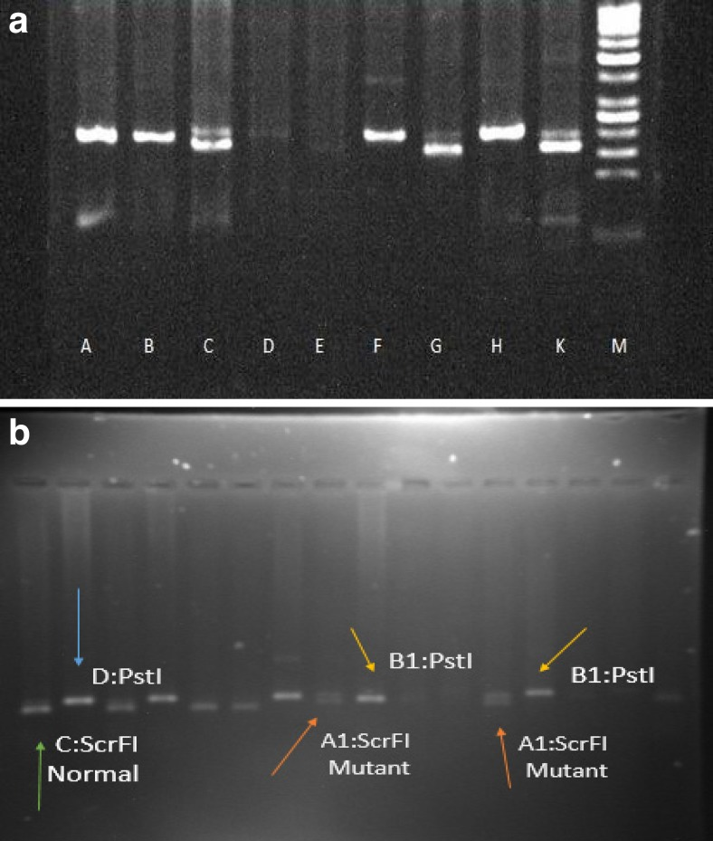 a A normal DNA, B and H PCR product uncut with Pst1, C and K heterozygous mutant-type cut with Scrf1: 194 bp and 174 bp fragmented and E negative control (water) M DNA marker. b Heterozygous mutant-type: 194 bp and 174 bp fragment by screening of PCR products using restriction enzymes ScrfI and PstI; A1 , heterozygous patient; B1 , C , and D homozygous normal