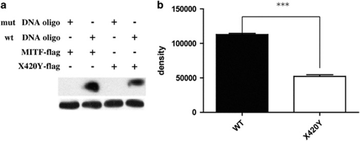 DNA-binding capacity of WS-associated MITF. ( a ) The melanoma UACC903 cells transfected with 1μg WT, X420Y plasmids were incubated with or without biotinylated double-stranded oligonucleotides of the MITF-binding region at the TYR promoter. The DNA/protein complex was pulled down with streptavidin agarose beads. The precipitated proteins were separated on SDS–PAGE in equal amounts of whole-cell lysates and analyzed by immunoblotting using anti-Flag M2 antibody. Actin was used as an internal control. DNA precipitation demonstrates that X420Y mutant retains the DNA-binding activity. As a negative control, WT and X420Y MITF protein did not bind to mutated double-stranded oligonucleotides. There were significant differences in the expression of WT and X420Y MITF protein binding with the TYR promoter. ( b ) The graph illustrates the quantification of WT and X420Y MITF by densitometry of experiments. (*** P