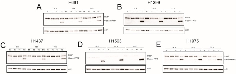 Reovirus-induced poly-ADP ribose polymerase (PARP) cleavage in NSCLC cell lines. ( A ) H661; ( B ) H1299; ( C ) H1437; ( D ) H1563; and ( E ) H1975 cells were mock infected (M) or infected with rsT1L (T1) or rsT3D (T3) at an MOI of 100 PFU/cell. Each cell line was treated with TNFα (5 ng/mL) and CHX (25 μg/mL) (T/C) 6 h prior to the 24 h time point. Whole cell lysates prepared at 24, 48, or 72 h post-infection were analyzed by SDS-PAGE and immunoblotted using a PARP-specific monoclonal antibody (top) and <t>β-actin</t> (bottom). Full-length and cleaved PARP proteins are indicated to the right of the upper panel. The images are representative of two independent experiments.
