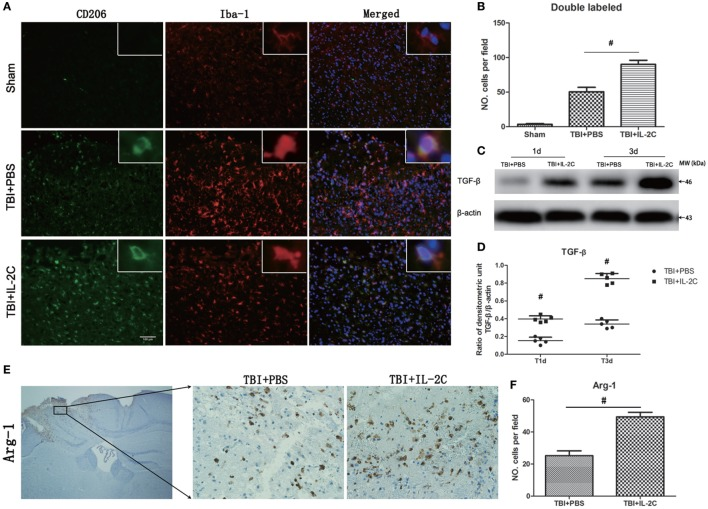 Treatment with IL-2C increased the expression of M2-associated markers in the contusion margin. (A) Co-localization of CD206 with the microglia marker Iba1 showed that IL-2C increased the number of M2 microglia on day 3 post-injury in the contusion area. (B) Cell count analyses indicated that IL-2C significantly increased the amount of CD206 and Iba-1-double-positive cells. (C,D) The traumatic brain injury TBI-induced expression of <t>TGF-β</t> in the ipsilateral cortices on days 1 and 3 post-injury was increased by treatment with IL-2C. (E,F) Immunohistochemistry showed that treatment with IL-2C significantly increased the number of arginase-1 + cells around the lesion area. Data are presented as the mean ± SD; * p