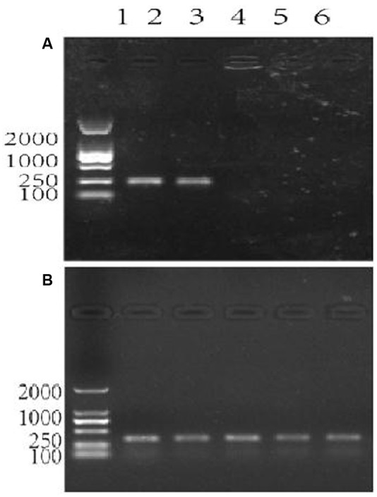 Agarose gel electrophoresis showing the assessment of specificity of the primer pair patF-F/patF-R used for the quantification of fungi ( Penicillium expansum ) DNA. Lane 1 in (A,B) : DNA 100-2000 Marker, Lanes 2–6 in (A,B) : DNA templates. (A) The primer pair used in the PCR reactions was patF-F/patF-R. DNA from PCR reactions in which different genomic DNAs were used as the templates were: lane 2: genomic DNA from P. expansum strain FS7; lane 3: genomic DNA from P. expansum strain PY; lane 4: genomic DNA from R. kratochvilovae strain LS11; lane 5: genomic DNA from R. mucilaginosa 3617, lane 6: genomic DNA from apple fruits cv. Fuji. (B) The primer pair used in the PCR reactions was ACTIN-F/ACTIN-R. Lanes 2–6 were loaded with DNA samples from PCR reactions in which the same genomic DNA templates as in (A) were used.