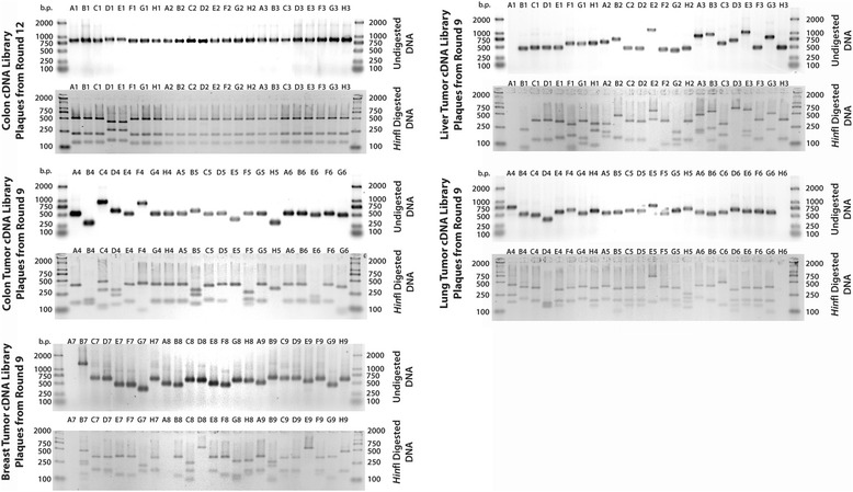 Agarose gel electrophoresis of PCR products obtained from normal colon, breast tumor, colon tumor, liver tumor and lung tumor individual plaques after nine rounds of selection with B-DAP immobilized on a neutravidin-coated plate. The DNA inserts, which were amplified using generic T7 primers, were also digested with Hin fI to produce unique DNA fingerprints of each clone. Clones that appeared more than once were sequenced