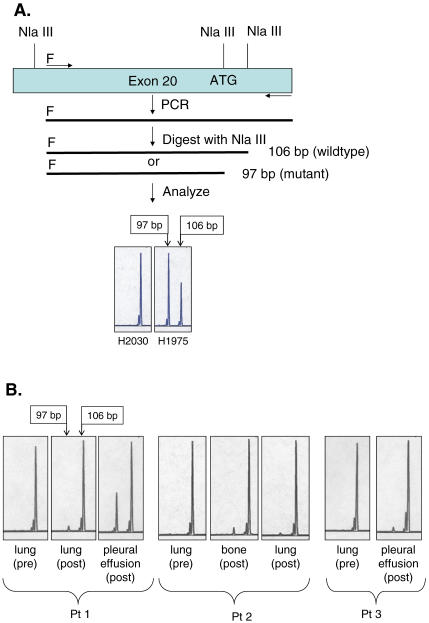"""A Novel PCR-RFLP Assay Independently Confirms Presence of the T790M Mutation in Exon 20 of the EGFR Kinase Domain (A) Design of the assay (see text for details). """"F"""" designates the fluorescent label, FAM. At the bottom of this panel, the assay demonstrates with the 97-bp NlaIII cleavage product the presence of the T790M mutation in the H1975 cell line; this product is absent in H2030 DNA. The 106-bp NlaIII cleavage product is generated by digestion of wild-type EGFR . (B) The PCR-RFLP assay demonstrates that pre-drug tumor samples from the three patients lack detectable levels of the mutant 97-bp product, while specimens obtained after disease progression contain the T790M mutation. Pt, patient."""