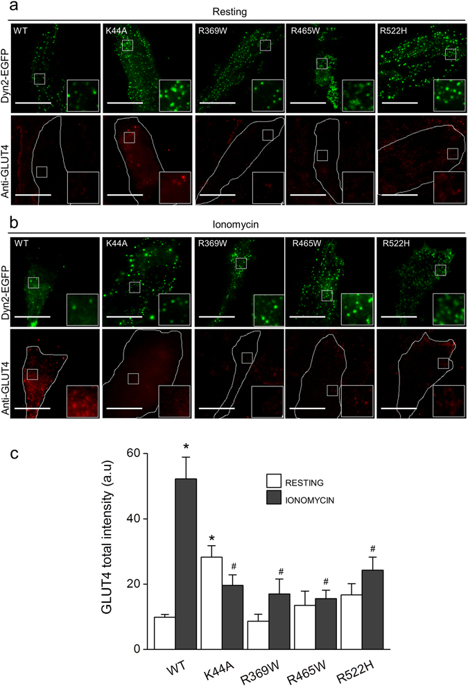 Dynamin-2-CNM-causing mutations reduce stimulus-induced translocation of endogenous GLUT4 in RCMH myoblasts. RCMH myoblasts were transfected with the dynamin-2 EGFP-fused constructs WT, K44A, R369W, R465W or R522H. 48 h later, transfected cells were stimulated with 20 μM ionomycin during 5 min, fixed, immunolabeled with a monoclonal antibody directed against GLUT4 and visualized by TIRF microscopy. Plasma membrane insertion of endogenous GLUT4 was quantified as the total intensity fluorescence of GLUT4 in the evanescent field. ( a , b ) Examples of TIRF images (250 × 250 pixels) of RCMH myoblasts at the resting ( a ) and ionomycin-stimulated condition ( b ). Cell periphery is drawn in white in GLUT4 panels. ( c ) Quantification of GLUT4 total intensity fluorescence in the evanescent field. Note that cells expressing K44A mutant exhibit significantly higher levels of GLUT4 at the resting condition compared to resting-cells expressing Dyn2WT. Ionomycin increased GLUT4 signal in Dyn2WT-transfected cells but was not enough to increase GLUT4 signal in myoblasts expressing all the mutated versions of dynamin-2. Data are expressed as the mean GLUT4 total intensity fluorescence ± SEM. Statistical comparisons were performed utilizing a two-tail t-test Welch corrected for parametric data. The symbols * and # denote significance compared to Dyn2WT-transfected resting cells and Dyn2WT-transfected stimulated cells respectively. N is between 18 and 35 cells, from at least three different cultures per experimental condition.