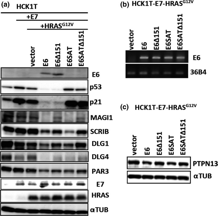 Establishment of HCKT ‐E7‐ HRAS G 12V expressing the wild type HPV 16E6 or its mutants defective for degradation of p53 and/or PDZ domain containing proteins. Expression of HPV 16E7, HRAS mutant, HRAS G 12V , and HPV 16E6 or its mutants was introduced to HCK 1T cells by retrovirus mediated transduction as described in Materials and Method. The levels of the wild type 16E6 and its mutant were examined by Western blots (a) and RT ‐ PCR (b). (a) The mouse monoclonal antibody for HPV 16E6 was raised against 16 amino acids of its N‐terminal region and therefore does not react with HPV 16E6 SAT which contains R8S/P9A/R10T substitution. While the wild type E6 and E6Δ151 which lacks its C‐terminal amino acid induced p53 degradation, E6 mutants with SAT substituions such as E6 SAT and E6 SAT Δ151 did not do so. The levels of PDZ domain containing proteins, such as Scribble ( SCRIB ), DLG 4, MAGI ‐1 ( MAGI ) and PAR 3 were decreased in wild‐type E6, but not E6Δ151 or E6 SAT Δ151 expressing cells. The level of HPV 16E7 and HRAS were not affected by the expression of E6. α‐tubulin was detected as a loading control. (b) mRNA levels of the wild type E6 and its mutants were comparable in those cells. 36B4 mRNA was also detected as an internal control. (c) The level of PTPN 13 was compared in indicated cells by Western blotting.