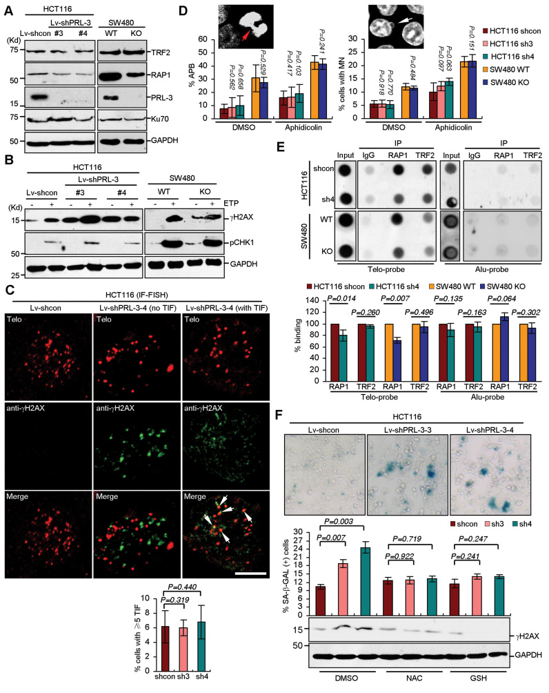 Silencing of PRL-3 promotes DDR and senescence. ( A ) Efficiencies of PRL-3 silencing in HCT116 (knockdown by two shRNAs using lentivirus system, left) and SW480 (knockout by CRISPR/Cas9 system, right) cells and its effects on indicated protein levels. WT, wild-type. KO, knockout. ( B ) Effects of PRL-3 silencing on phosphorylations of H2AX and CHK1. Samples treated with 20 μM etoposide (ETP) for 4 h were used as positive controls. ( C ) Effects of PRL-3 silencing on TIF formation. Indicated HCT116 cells were subjected to IF-FISH staining. Upper, representative staining. Arrows, colocalizations between γH2AX and telomere (TIFs). Scale bar, 5 μm. Lower, quantification of cells with ≥5 TIF. Mean ± SD of two independent experiments. n > 200 cells per single experiment. Student's t -test. ( D ) Effects of PRL-3 silencing on anaphase bridges (APB) and micronuclei (MN) formation. Indicated cells were treated with aphidicolin (0.2 μM) or DMSO (1:1000) for 24 h, followed by DAPI staining. Mean ± SD of two independent experiments. n > 1000 cells scored per sample for MN and n > 50 anaphase cells scored per sample for APB. Student's t -test. Representative images of APB (red arrow) and MN (white arrow) of HCT116 cells stained with DAPI were shown. ( E ) ChIP analysis of RAP1 and TRF2's binding to telomeric or Alu DNA in HCT116 and S480 cells silenced for PRL-3. Upper, representative blots after ChIP with indicated antibodies or IgG. Input, 2% DNA. Lower, quantification of relative OD. Relative OD was calculated by normalizing to that of input and relative OD of control was set as 100%. Mean ± SD of three independent experiments. Student's t -test. ( F ) PRL-3 silencing induced ROS-dependent cellular senescence and DNA damage response. Indica ted HCT116 cells were treated with NAC (10 mM), GSH (10 mM) or DMSO (1:1000) for 24 h. Part of cells were fixed and processed for β-galactosidase staining, others were analyzed by western blot. Upper, representative β-galactosidase staining of cells treated with DMSO. Middle, quantification of β-galactosidase positive cells. Mean ± SD of two independent experiments. n > 400 cells per single experiment. Student's t -test. Lower, western blot of γH2AX.