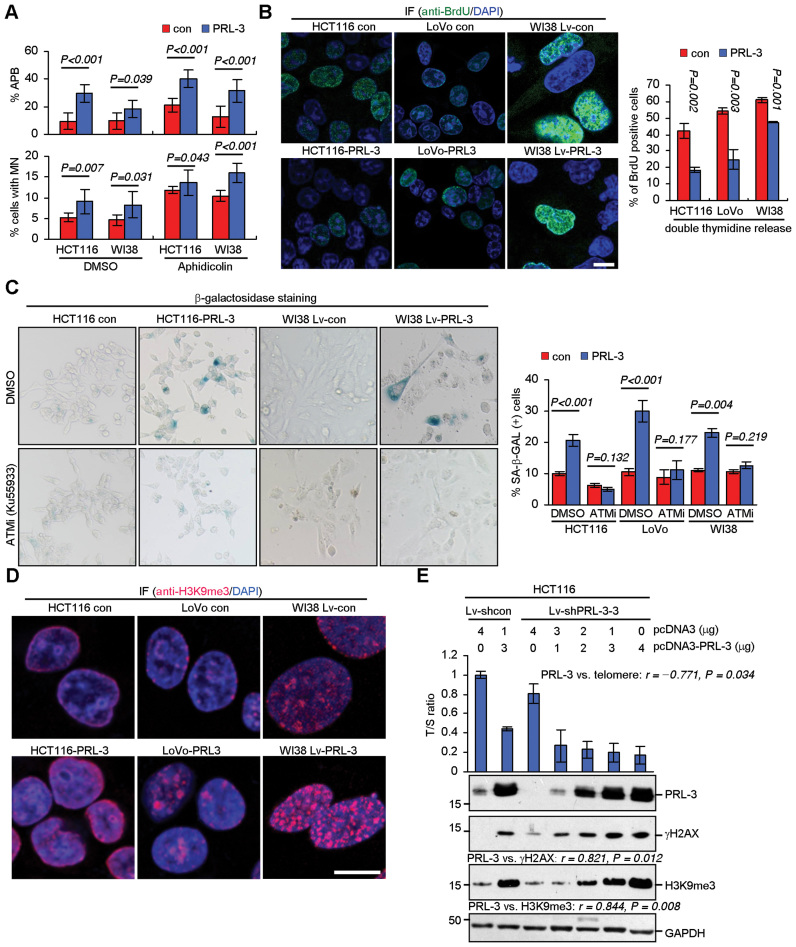 Overexpression of PRL-3 promotes chromosomal instability and senescence. ( A ) Effects of PRL-3 stable overexpression on APB and MN formation. Indicated cells were treated with aphidicolin (0.2 μM) or DMSO (1:1000) for 24 h, followed by DAPI staining. Mean ± SD of two independent experiments. Student's t -test. n > 1500 cells scored per sample for MN or n > 60 anaphase cells scored per sample for APB. ( B ) Effects of PRL-3 stable overexpression on BrdU incorporation. Indicated cells were treated with double-thymidine block, released into fresh medium containing 10 μM BrdU and incubated for 45 min. Cells were fixed, immunostained with anti-BrdU (green), and counterstained with DAPI (blue). Left, representative staining of BrdU. Scale bar, 15 μm. Right, quantification of BrdU-positive cells. Mean ± SD of two independent experiments. n > 300 cells per single experiment. Student's t -test. ( C ) Effects of PRL-3 stable overexpression on senescence. Indicated cells were treated with DMSO (1:1000) or Ku55933 (5 μM) for 24 h, followed by β-galactosidase staining. Left, representative staining. Right, quantification of β-galactosidase positive cells. Mean ± SD of three independent experiments. n > 500 cells per single experiment. Student's t -test. ( D ) Effects of PRL-3 stable overexpression on H3K9me3 levels. Indicated cells were fixed, immunostained with anti-H3K9me3 (red), and counterstained with DAPI (blue). ( E ) Effects of reconstituted PRL-3 on telomere length, DNA damage and senescence in PRL-3 stable knockdown cells. HCT116 control and PRL-3 stable knockdown cells were co-transfected with indicated amount of pcDNA3 and pcDNA3-PRL-3 plasmids. The total amount of plasmids for each sample was adjusted to 4 μg. After 72 h, protein lysates were subjected to western blot of PRL-3, γH2AX, H3K9me3 (lower). Genomic DNA was used for qPCR analysis of telomere length (upper). Protein bands were scanned and relative OD was calculated by normalizing to GAPDH. T/S ratio of HCT116 control cells transfected with pcDNA3 was set as 1. Pearson χ2 test.