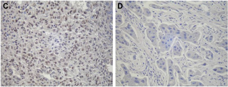 Immunohistochemical expression of CXCL12 and p-STAT3 in NSCLC tissues (SP method; magnification, ×200). Notes: ( A ) Immunoreactivity was observed in the malignant cell cytoplasm. The brown granules in the cytoplasm of NSCLC cells indicate CXCL12. ( B ) Negative expression of CXCL12 in NSCLC tissues. ( C ) Nuclear staining of p-STAT3 in NSCLC tissues. ( D ) Negative expression of p-STAT3 in NSCLC tissues. Abbreviations: NSCLC, non-small-cell lung cancer; SP, streptavidin–peroxidase biotin.
