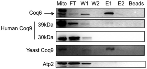 The human Coq9 polypeptide associates with yeast Coq6. Mitochondria were isolated from <t>CNAP6</t> and CNAP6: mcHCOQ9 . Purified mitochondria (13 mg) were solubilized and co-precipitation was then performed on the solubilized mitochondria with <t>Ni-NTA</t> resin. Flow-through (FT), wash (W1 and W2), eluate (E1 and E2), and beads from co-precipitation were collected. 0.17% of the FT, 0.25% of W1, 0.25% of W2, 1% of E1, 0.5% of E2, and 1.25% of Ni-NTA resin were analyzed by SDS-PAGE followed by immunoblotting with antibodies against yeast Coq9, Coq6, human COQ9, and Atp2. Purified mitochondria (15 μg) from CNAP6: mcHCOQ9 were included as control.