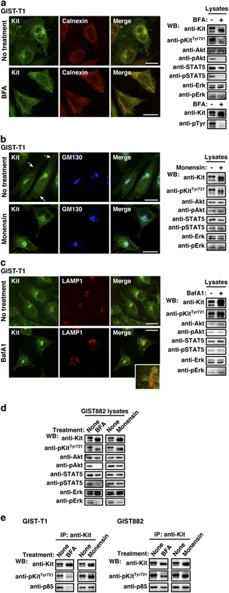 Kit(mut) on the Golgi signals and activates the PI3K-Akt pathway, STAT5, and Erk. ( a – c ) GIST-T1 cells were treated with ( a ) 1 μ M BFA (brefeldin A; blocks ER export to the Golgi) for 16 h, ( b ) 250 n M monensin (blocks Golgi export) for 24 h, or ( c ) 100 n M bafilomycin A1 (BafA1; blocks endo/lysosomal trafficking) for 24 h. Cells were stained with anti-Kit (green) in conjunction with anti-calnexin (ER marker, red), anti-GM130 (Golgi marker, blue), or anti-LAMP1 (endo/lysosome marker, red). Arrows indicate the PM region. An inset shows a magnified image of the boxed area. Bars, 20 μm. Immunoblots are shown. Phosphorylated proteins are presented as pKit, pAkt, pSTAT5, and pErk. ( d ) GIST882 cells were treated with 1 μ M BFA for 16 h or 250 n M monensin for 24 h. Lysates were immunoblotted. ( e ) GIST-T1 and GIST882 were treated with 1 μ M BFA for 16 h or 250 n M monensin for 24 h. Anti-Kit immunoprecipitates were immunoblotted.