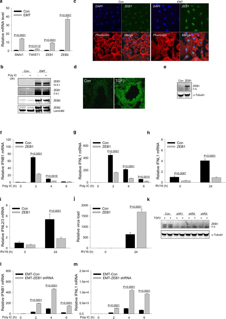 ZEB1 downregulates the IFN response in hSAECs and TGFβ-induced EMT-hSAECs a , Q-RT-PCR analysis of EMT core transcription factors ( SNAIL1 TWIST1 ZEB1 and ZEB2 ) in hSAECs (Con) and EMT-hSAECs (EMT). b , Western blot analysis of ZEB1 and ZEB2, using cellular nuclear exacts from hSAECs (Con) and EMT-hSAECS (EMT) stimulated with 50 µg/mL poly(I:C) for 0h and 3h. LaminB2 was used as the loading control. s.e., short exposure; l.e., long exposure. c , Confocal immunofluorescence imaging for ZEB1 in hSAECs (Con) or EMT-hSAECs (EMT). The secondary Ab was Alex Fluo 488 (green). d , Confocal immunofluorescence staining of ZEB1 in mouse lung from chronic TGFβ-induced fibrosis/EMT. Con, PBS-treated mouse lung; TGFβ, TGFβ—treated mouse lung. Shown is the representative staining from five images. e , Western blot analysis of ZEB1, and α-tubulin as loading control, using total protein exacts from hSAECs stably transduced with Lentiviral ZEB1. The empty lentiviral-transduced hSAECs were used as controls. Shown are representative blots from two experiments. n.s, nonspecific bands. f – g , Q-RT-PCR analysis of IFNB1 ( f ) and IFNL1 ( g ) in Con and ZEB1 cells used in c , stimulated with 50 µg/mL poly(I:C) for 0h, 2h, 4h and 6h. h-j , Q-RT-PCR analysis of IFNL1 ( h ), IFNL2 / 3 ( i ) and RV16 viral RNA 5' UTR ( j ) in Con and ZEB1 cells used in c , infected with RV16 (MOI = 1) for 24h. Data are shown as fold change normalized to unstimulated cells (Con). k , Western blot analysis of ZEB1, and α-tubulin as loading control, using total protein exacts from hSAECs stably transduced with 3 inducible lentiviral ZEB1 shRNAs (shR1, shR2 and shR3). Cells were first induced to EMT by 10 ng/mL of TGFβ for 15 days and then treated with 2 µg/mL doxycycline for 72 h. Cellular samples were treated and collected in biological duplicates. Non-silencing shRNA-transduced cells under the same conditions were used as controls (EMT-Con). Shown are representative blots from two experiments. l – m , Q-RT-PC