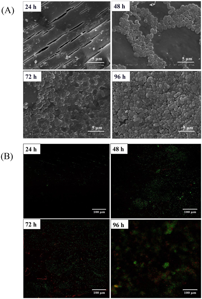 Growth of an Acinetobacter sp. DW-1 biofilm on polyhedron hollow polypropylene balls visualized by scanning electron microscopy ( A ) and confocal laser scanning microscopy ( B ).