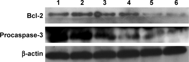 Expression level of Bcl-2 and procaspase-3 in PC-3 cells after the treatment with different nanocomplexes for 24 h using Western blot: 1, control; 2, Bcl-2 siRNA; 3, DOX-Duplex; 4, PEI25K/DOX-Duplex; 5, PEI25K/siRNA and 6, PEI/DOX-Duplex/siRNA. Abbreviations: DOX, doxorubicin; PEI, polyethylenimine.
