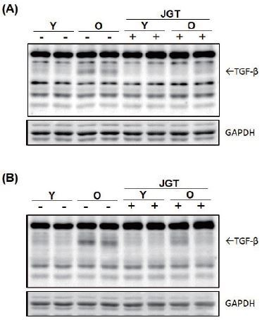 Western blot analysis of TGF-β expression in tibialis anterior (A) and gastrocnemius (B) muscles of young and old mice. GAPDH was used as the internal control. Y, young mice; O, old mice; JGT, Jaeumganghwa-tang; GAPDH, glyceraldehyde 3-phosphate dehydrogenase.