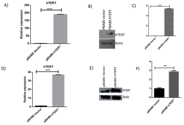 hTERT overexpression in HeLa and U2OS cell lines. hTERT is overexpressed in U2OS and HeLa cell lines. (A D) mRNA level of hTERT in U2OS HeLa cell lines was determined by quantitative real-time PCR. (B E) Western blotting confirms overexpression of hTERT in U2OS and HeLa cell line. (C F) Histograms depict densitometric quantification of the hTERT overexpression of three corresponding independent Western blot experiments in U2OS and HeLa cell lines.