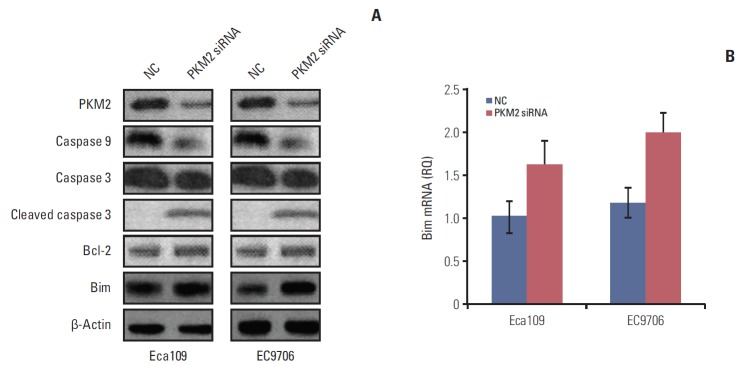 Knockdown of PKM2 altered the expression of apoptosis-related proteins. Eca109 or EC9706 cells (3×10 5 cells/well) were plated in a 12-well plate. PKM2 was knocked down in Eca109 and EC9706 cells by <t>siRNA</t> (50 nM final concentration for both PKM2-specific and NC siRNA). At 48 hours after <t>transfection,</t> the whole cell extracts were collected for western blot. Total RNA was extracted from cultured cells (Eca109 and EC9706) using Trizol reagent according to the manufacturer's instructions. β-Actin and Bim mRNA were quantified in duplicate by SYBR Green 2-step, real-time reverse transcription polymerase chain reaction. (A) Caspase 9, caspase 3, cleaved caspase 3, Bcl-2, and Bim were detected by western blot. The results showed that knockout PKM2 activated caspase 3 and downregulated caspase 9. Bim protein expression was evidently increased. (B) Bim mRNA level was increased in depletion PKM2 esophageal cancer cells. PKM2, pyruvate kinase muscle isozyme 2; NC, normal control.