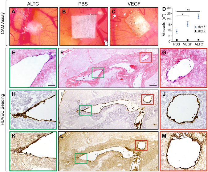 Neo-angiogenesis and re-endothelisation of ALTCs. CAM assay of ( A ), decellularized liver cube, ( B ), sponge soaked in PBS, and ( C ), sponge loaded with VEGF. ( D ) Quantification of observed vessels at 0 and 7 days, showing a significant difference between the ALTCs after 7 days when compared to the negative control (PBS). Recellularization of ALTCs with HUVECs after 7 days, characterized by positive staining with ( E–G ), H E, ( H–J) , CD31 and ( K–M) , FVIII, confirming the migration and attachment of the endothelial cells to the lumen of the vessels and their functionality. Data are expressed as mean ± sem. *p