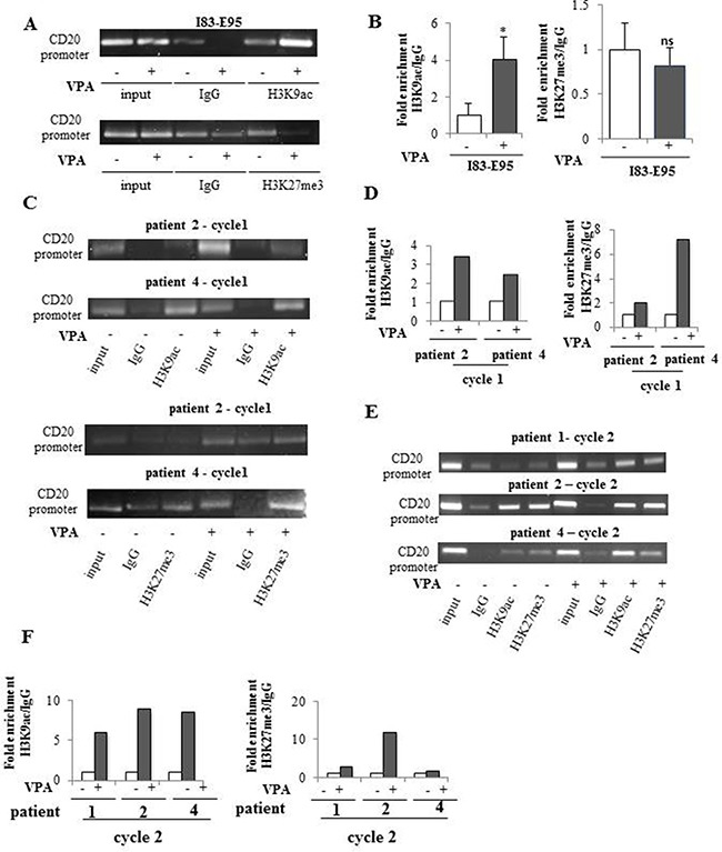Valproate induces simultaneous H3K9ac and H3K27me3 in the CD20 promoter in CLL patients in vivo but not in the I83-E95 CLL cell line I83-E95 cells were incubated with or without valproate (VPA) at 1000 μM for 72 hours and subjected to ChIP with anti-H3K9ac ( A , top) or anti-H3K27me3 (A, bottom) antibodies. Patient samples collected after 0 and 72 hours of valproate-treatment from cycle 1 ( C ) and cycle 2 ( E ) of the PREVAIL study were subjected to ChIP with anti-H3K9ac and anti-H3K27me3 antibodies. Levels of H3K9ac and H3K27me3 on the CD20 promoter were evaluated by densitometry analysis and expressed in graphs ( B , D , F ). (Mean values, bars ± s.e.m, n = 3). Stars indicate statistical significance (* p