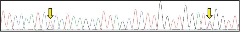 Electropherogram from Sanger sequencing of rRNA amplicons for a clonal isolate of Haematococcus pluvialis . Arrows indicate sites of putative intragenomic variation in a relatively short stretch of primary sequence.