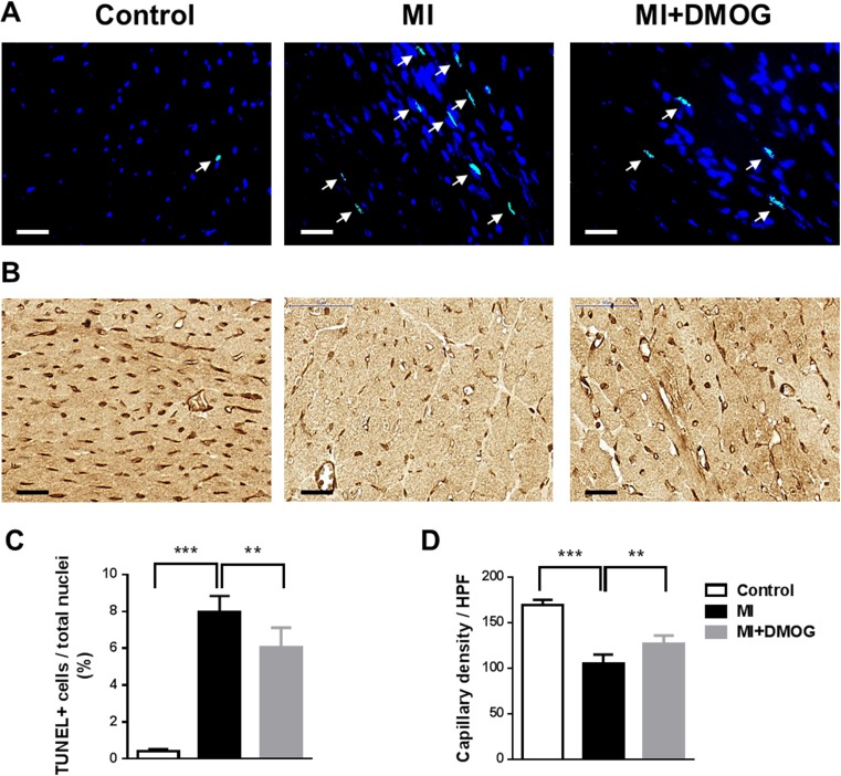 DMOG treatment decreased apoptotic cells and increased neovascularization. a Representative co-staining of TUNEL-positive ( bright green nuclei marked by arrows ) and DAPI+ ( blue nuclei ) cells in non-infarcted and infarcted mice ± DMOG treatment 30 days after MI. Scale bar represents 25 μM. b Representative immunohistochemical staining of CD31 ( brown ) in infarcted hearts 30 days after MI. Scale bar represents 25 μM. c Bar graph representing the percentage of TUNEL-positive nuclei to total nuclei in the infarct border zone 30 days after MI. Data represent mean ± SD ( n = 6). d Bar graph showing the numbers of CD31+ capillaries in the infarct border zone in non-infarcted control mice, infarcted mice, and infarcted mice treated with DMOG 30 days after MI. Data represent mean ± SD ( n = 6); ** p