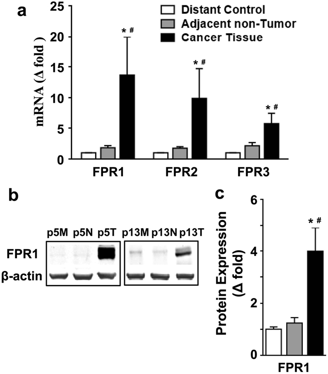 Expression of FPRs was increased in CRC tissues. ( a ) The levels of FPR mRNA in CRC tissues, distant control, and adjacent non-tumor tissues were examined with real-time quantitative PCR. The relative transcript expression was calculated as 2 −ΔΔCT and was normalized against GAPDH/PPIA. ( b ) The tissue homogenates were analyzed by western blotting for the expression of FPR1. Two representative sample blots (p5 and p13) are shown. M, distant mormal tissue; N, adjacent non-tumor tissue; T, cancer tissue. The full-length blots were presented in Supplementary Fig. S3 . ( c ) The blots were quantified densitometrically and the relative immunoreactivities are shown. All data shown are means ± SEM. * p