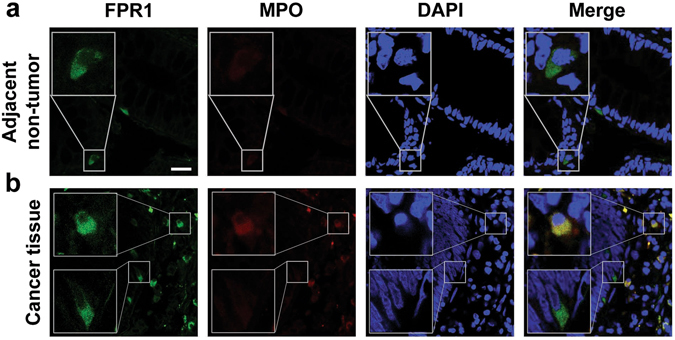 Immunofluorescence staining of FPR1 in human CRC tissues. Frozen sections of the adjacent normal tissues ( a ) and CRC tissues ( b ) were stained by immunofluorescence for the expression of FPR1 (FITC, green) and MPO (Cy3, red), as described in Materials and Methods . Cell nuclei were stained with DAPI (blue). Images shown are representative of three independent experiments with similar results. Scale bar, 25 µm.