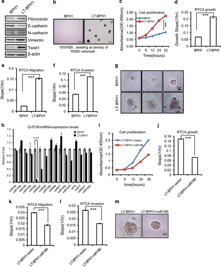 MiR186 is a key factor in inflammation-associated cell transformation. ( a ) Immunoblotting of epithelial and mesenchymal markers in BPH1 and LT-BPH1 cells. ( b ) Soft-agar colony-formation assays for BPH1 and LT-BPH1 cells. The culture medium containing 10% FBS with 0.35% agar was layered onto the base. Representative images of the colonies were shown, and the same scale bar (100 μm) was used in the images. ( c , i ) CCK8 cell-proliferation assays for BPH1 and LT-BPH1 cells ( c ), LT-BPH1-Vector and LT-BPH1-miR186 cells ( i ). ( d , j ) RTCA growth assays for BPH1 and LT-BPH1 ( d ), LT-BPH1-Vector and LT-BPH1-miR186 cells ( j ). The growth slopes were shown as histogram. Error bars indicate ±s.d., *** P -values
