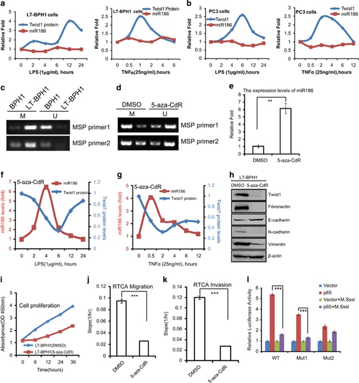 High methylation of CpG islands in the miR186 promoter blocks its response to inflammation signals in transformed or malignant cells. ( a , b ) LT-BPH1 ( a ) and PC3 ( b ) were treated with 1 μg/ml LPS or 25 ng/ml TNFα for different time periods as indicated, and lysed for western blotting analysis of Twist1 and real-time PCR analysis of miR186. ( c , d ) MSP (methylation-specific PCR) analysis for the methylation levels of CpG islands in the miR186 promoter in BPH1 and LT-BPH1 ( c ), and in LT-BPH1 treated with 5 μ m 5-aza-CdR for 24 h ( d ). 'U' represents unmethylated DNA products amplified with non-methylation-specific primers, and 'M' refers to methylated DNA products amplified with methylation-specific primers. ( e ) Real-time PCR analysis for the miR186 levels in LT-BPH1 treated with or without 5 μ m 5-aza-CdR for 24 h. U6 was used as internal control. The experiments were performed at least three independent times, and error bars indicate ±s.e.m., ** P -values