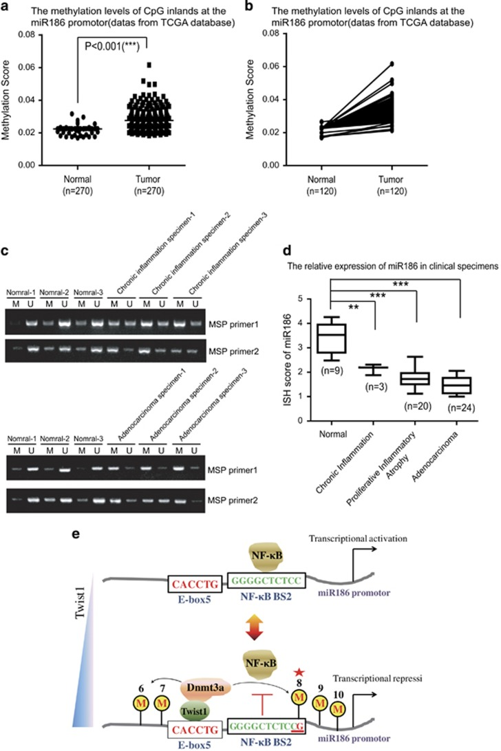 The miR186 expression and its promoter methylation are related with inflammation-associated PCa. ( a ) Methylation scores of miR186 promoter were derived from the TCGA database, including prostate cancer samples ( n =270) and normal samples ( n =270). ( b ) Comparison of the methylation levels of miR186 promoter in the top 120 most significant difference paired clinical cases. The dots represent the relative methylation score of miR186 promoter and each pair of dots connected by a dash line denotes a set of paired specimens. ( c ) DNA isolated from normal, chronic inflammation or tumor samples was subjected to methylation-specific PCR using methylated-specific ('M') and unmethylated-specific ('U') primers from the miR186 promoter. ( d ) Assessment of miR186 levels by in situ hybridization in normal prostate tissues, chronic inflammation specimens, proliferative inflammatory atrophy tissues and adenocarcinoma specimens. ( e ) A schematic representation of the proposed Twist1-dependent site-specific CpG8 methylation through recruiting Dnmt3a to the miR186 promoter to block the transcriptional activity of NF-κB/p65.