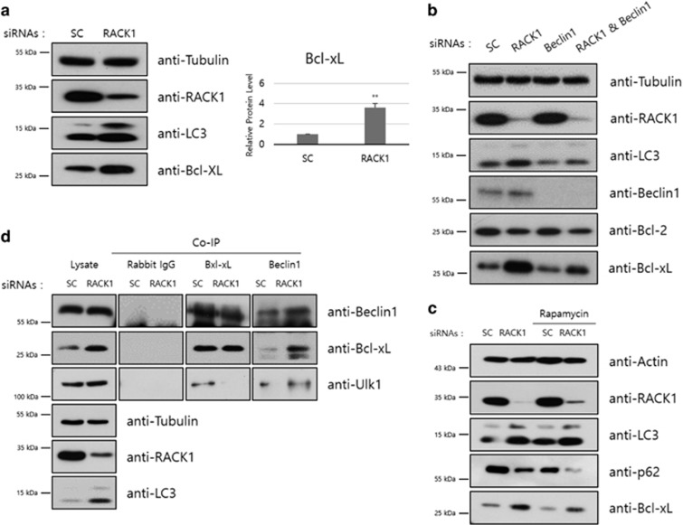 Knockdown of RACK1 increases Bcl-xL protein level. ( a ) HT1080 cells transfected with control or RACK1 siRNAs (50 pmol) were incubated for 48 h, followed by immunoblot analysis using the indicated antibodies (left panel). Intensities of Bcl-xL protein was normalized against that of tubulin protein, and the relative expression in RACK1 siRNA-treated cells compared with that in control cells was plotted (right panel). ** P