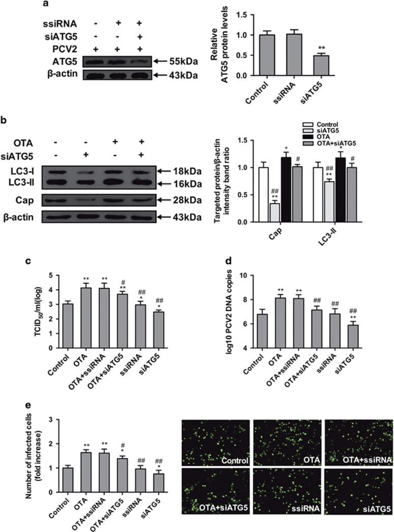 Inhibition of autophagy with siATG5 reverses the PCV2 replication promotion induced by OTA in PK-15 cells. PCV2-infected cells were incubated with or without ATG5 siRNA. The cells were then assayed for the expression levels of ( a ) ATG5 and  β -actin (loading control). The data are presented as means±S.E. of three independent experiments. Statistical significance compared with the control is indicated by * P