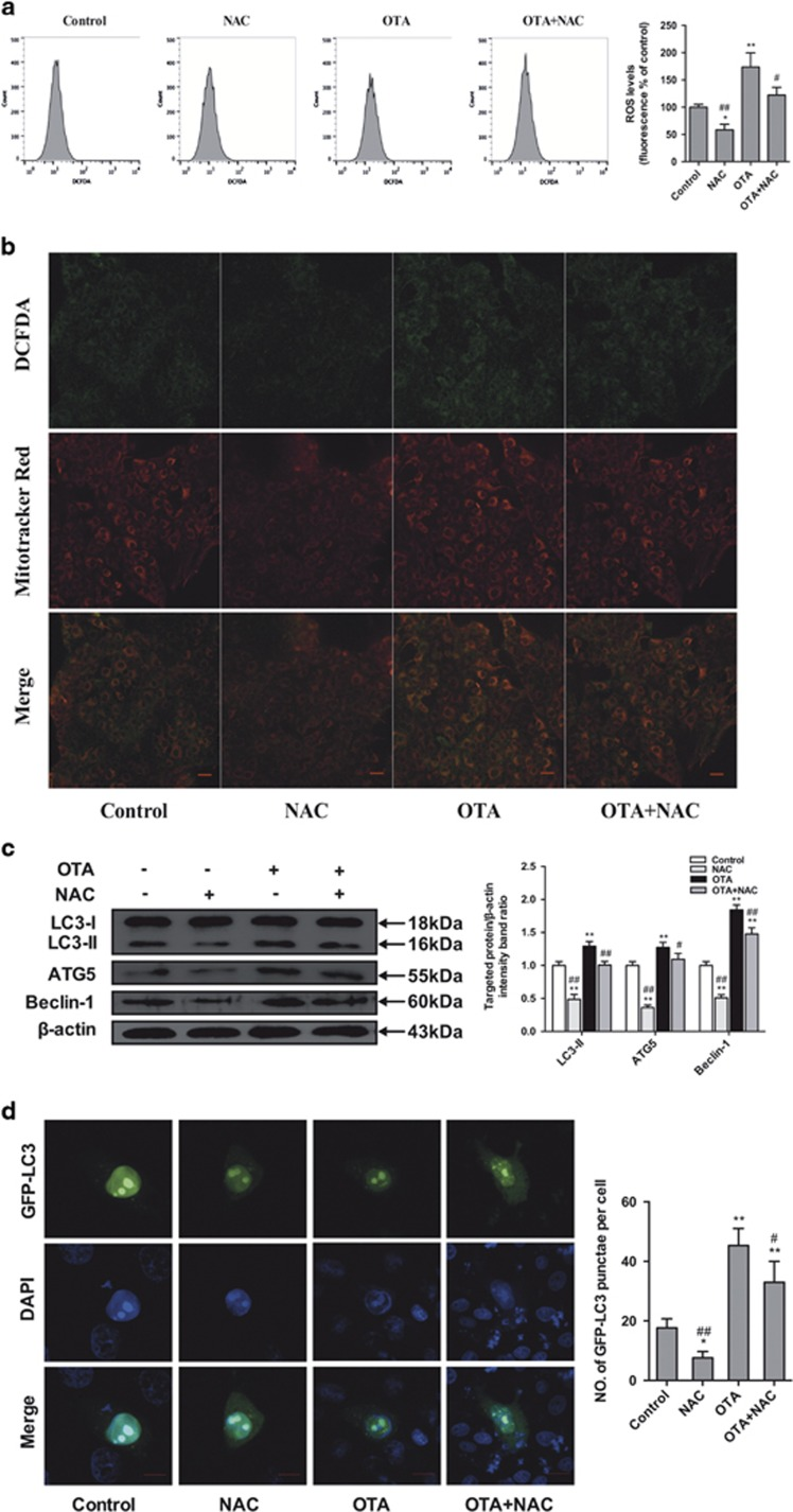 Effects of OTA and/or NAC on oxidative stress and autophagy in PCV2-infected PK-15 cells. PK-15 cells were inoculated with PCV2 for 24 h and then inculated with OTA (0.1  μ M), NAC (5 mM), or OTA and NAC together for an additional 48 h. ( a ) The cells were then incubated with DCFH-DA (10  μ M) at 37 °C for 30 min. The level of ROS was determined by flow cytometry. The level of intracellular ROS, which was indicated by an increase in the fluorescence intensity of the cells, was calculated as the percentage of that of the control cells. ( b ) Representative flourescent staining showing ROS visualized by DCFH-DA fluoreseence (green), and mitochondria labeled by MitoTracker Red CMXRos (red) in PK-15 cells, yellow color (green plus red) indicates the colocalization of ROS and mitochondria. Scale bar: 10  μ m. ( c ) The cells were collected, and the expression levels of LC3, ATG5, Beclin-1 and  β -actin (loading control) were analyzed by immunoblotting with specific antibodies as described in Materials and Methods. ( d ) PK-15 cells were first transfected with the GFP-LC3 plasmid. After 24 h, the cells were inoculated with PCV2 for 24 h and then incubated with OTA (0.1  μ M), NAC (5 mM), or OTA and NAC together for an additional 48 h. The fluorescence signals were visualized by confocal immunofluorescence microscopy. Scale bar: 10  μ m. The average number of LC3 puncta in each cell was determined from at least 100 cells in each group. The data are presented as means±S.E. of three independent experiments. Statistical significance compared with the control is indicated by * P