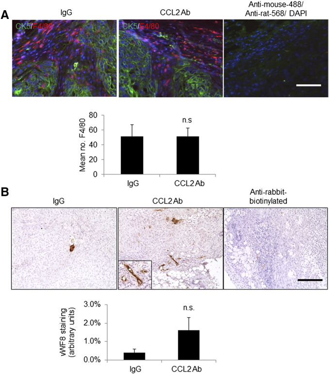 Delivery of CCL2-neutralizing antibodies did not significantly affect macrophage infiltration or tumor angiogenesis. (A) Primary tumor tissues were co-immunofluorescent stained for CK5 (green) and F4/80 (red). Secondary antibody controls overlaid with 4′,6-diamidino-2-phenylindole are shown. (B) Primary tumor tissues were immunostained for vWF8. Magnified insert shows positive staining. Staining was quantified by Image J. Statistical analysis was performed using two-tailed Student's t test. Statistical significance was determined by P